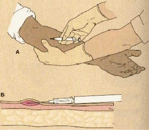 Kỹ thuật tiêm dưới da